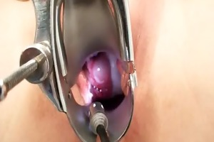 slender d like to fuck gyno clinic exam by